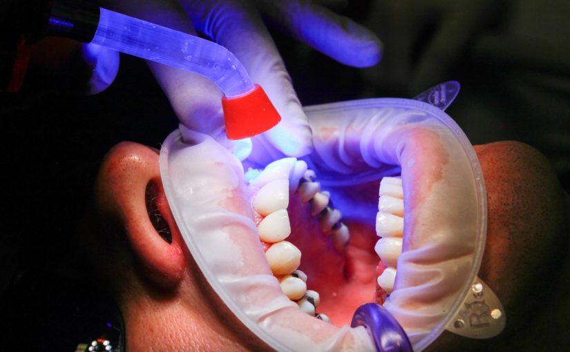 Zły sposób żywienia się to większe braki w ustach a także ich utratę